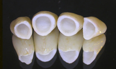 New denture repairs Chicago
